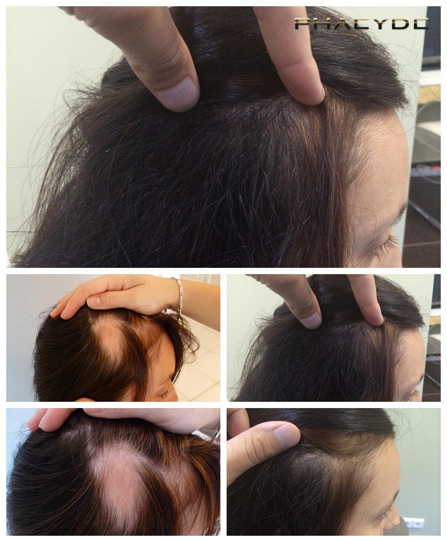 Vitamine per capelli in shampoo contro risposte di perdita